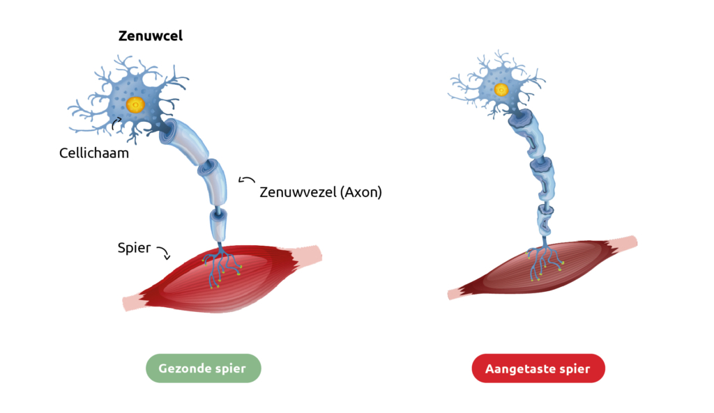 Schematische vergelijking van een spier met ALS en een gezonde spier.