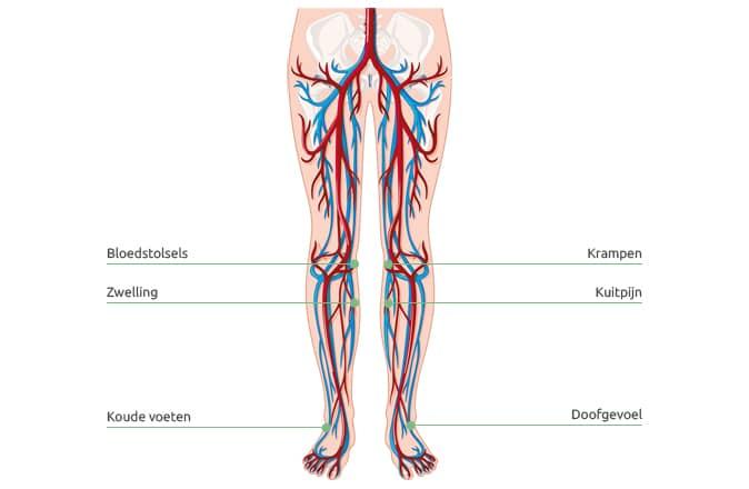 Schematische weergave van de bloedcirculatie in de benen. Een slechte bloedsomloop zorgt voor vermoeide benen.