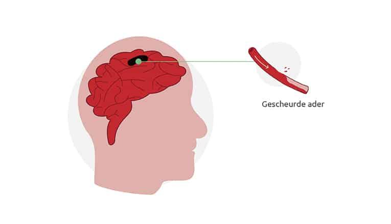 Een gescheurd bloedvat is de oorzaak van een hersenbloeding.