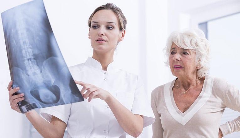 Een dokter laat een MRI-scan zien aan een vrouw met klachten van artrose in de rug.
