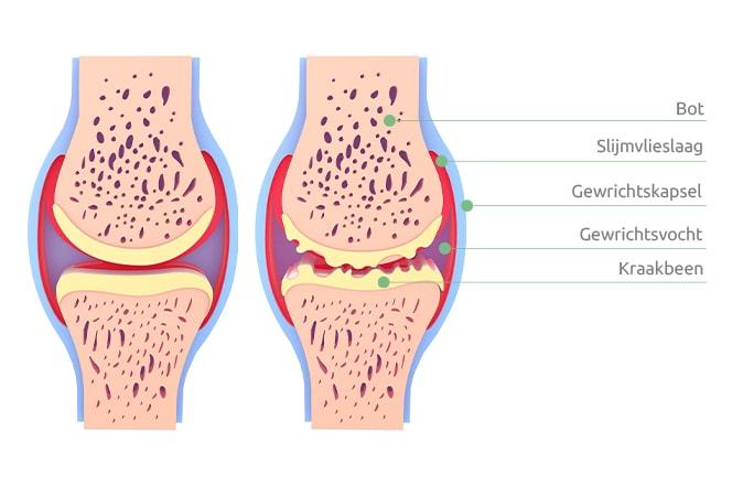 Een schematische afbeelding van een knie met artrose en van een gezonde knie.