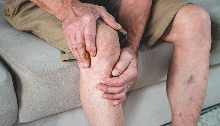Man met artrose in zijn knie ervaart pijn en ongemak, dat zijn artrose symptomen.