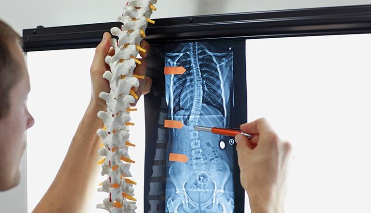 Een arts toont een rugwervel in een normale stand en een röntgenfoto van rugwervel van een volwassene met symptomen van scoliose.