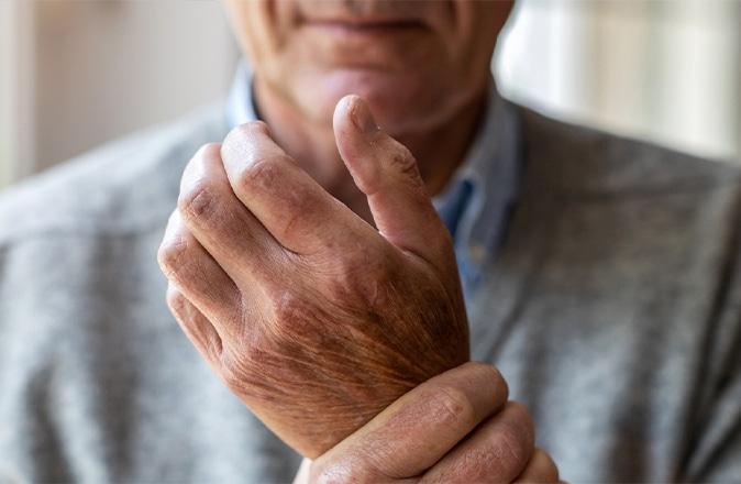 Een oudere man heeft last van reuma in zijn handen, een reumasoort.
