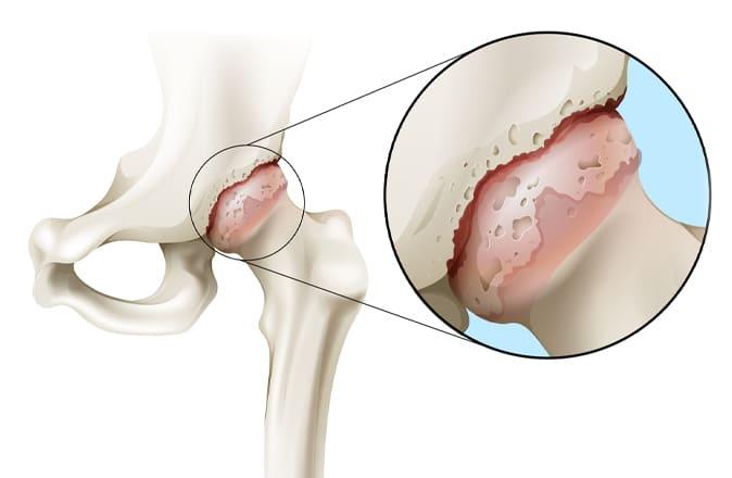 Een schematische weergave van wat artrose in de heup is: een heup met artrose en een gezonde heup.
